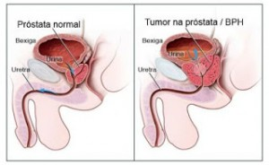 Quando a próstata está anormal, ela diminui o fluxo da uretra.